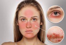 Причины появления и лечение розацеа