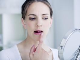Герпес на лице: причины появления и лечение