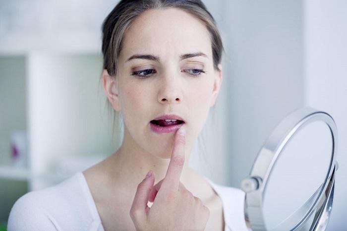 Почему появляется герпес на коже лица Чем и как лечить
