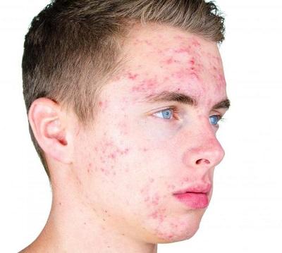 Причины появления и спобобы лечения подростковых прыщей