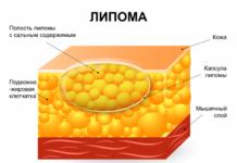 Причины появления и лечение липом