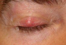Лечение ячменя на глазу в домашних условиях
