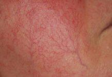 Купероз — на лице, причины развития и лечение